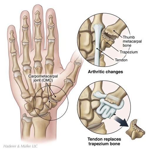Basal thumb joint replacement